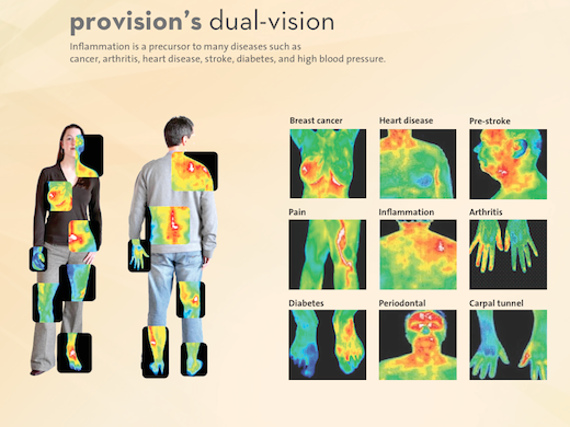 Provision attaches to your smartphone and uses an infrared camera to diagnose a number of diseases.