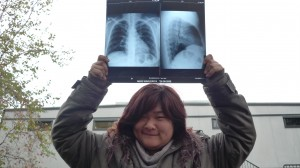 erica with her xray